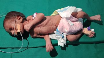 The baby weighed just 1.1kg when it was discovered.
