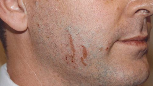 Scratches on Gerard Baden-Clay's face were discussed in court. (AAP)
