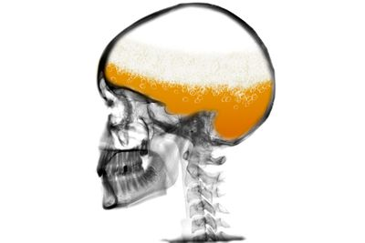 Alcohol kills brain cells