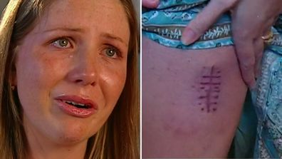 Young mum diagnosed with melanoma has a message for all Australians