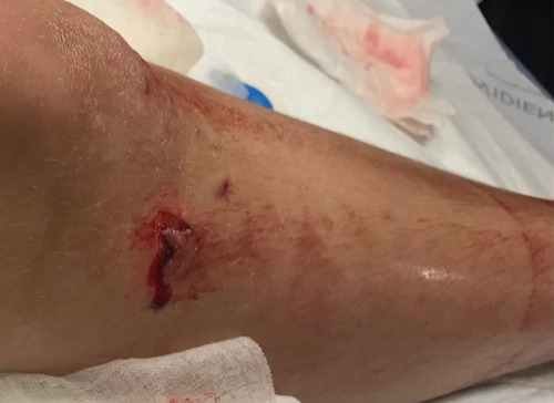 Peyton Shields required 40 stitches after a shark attack at Crescent Beach, Bakers County Florida last week.
