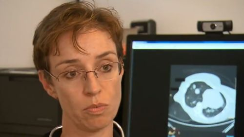 Dr Emily from Sydney's St Vincent's Hospital spoke to 9NEWS about the screening program. (9NEWS)