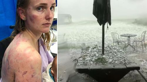 Fiona Simpson was battered as she tried to protect her infant daughter from a vicious hail storm.