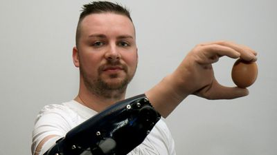 Three Austrians have replaced injured hands with bionic ones that are controlled by nerves and muscles transplanted into arms from legs. <br> <br> The bionic arm allows for people to perform daily tasks like picking up items, doing up buttons and cutting up food with a knife. (AAP)