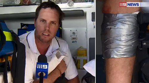 Scott van Burck patched up his own shark bite wound. (9NEWS)