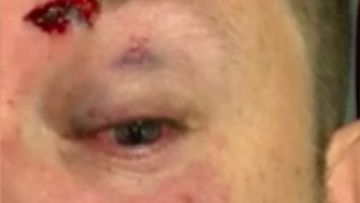 NSW police sergeant attacked