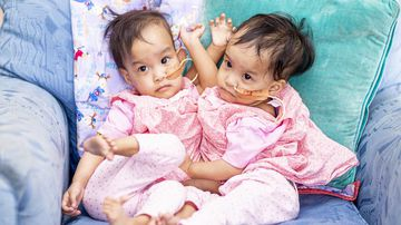 Conjoined twins Nima and Dawa remain close despite their surgical separation.