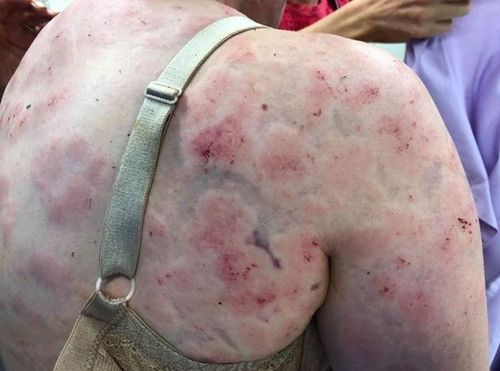 The 23-year-old and her grandmother suffered serious bruising cuts.