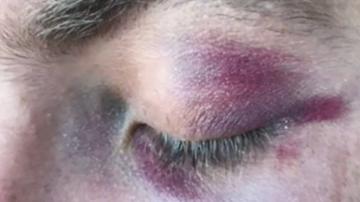 Teen who kicked officer in head walks free