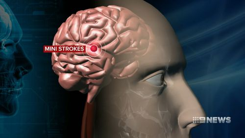 Vascular dementia is the second most common form of dementia, and the second leading cause of death in Australia. Picture: 9NEWS