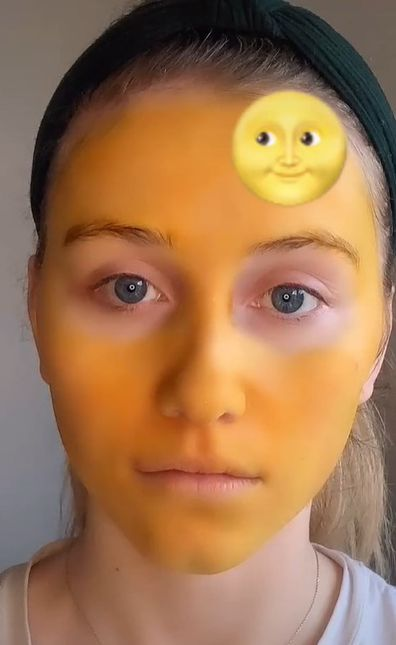 Woman's home face mask remedy dyes her skin bright yellow