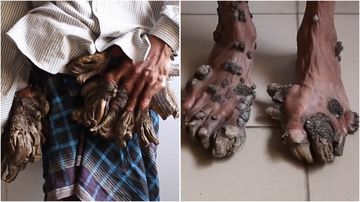 Abul Bajander has suffered tree like growths on his body for over two decades.