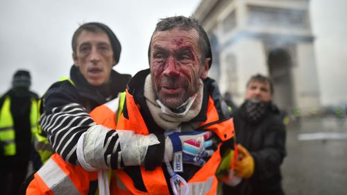 Protests turned violent as thousands took to the streets of Paris again for a third weekend, angry about rising taxes