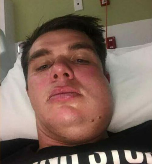 Carl Teusner is awaiting surgery for the broken jaw he sustained in the on-field violence.