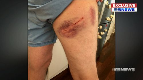 A couple was attacked when they came to the aid of the elderly woman. (9NEWS)