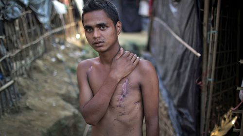 Mohammadul Hassan, 18, is photographed outside his family's tent in Jamtoli refugee camp in Bangladesh. Hassan still bears the scars on his chest and back from being shot by soldiers. (Photo: AP).