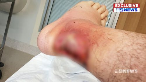 The burns became infected and now require surgery. Picture: 9NEWS