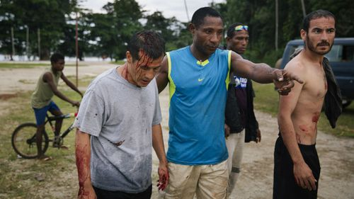 Two Afghan refugees were allegedly attacked by a group of locals on Manus Island. (Matthew Abbott/GetUp via AAP)