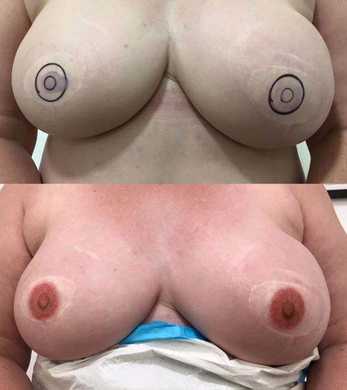 Breast cancer survivors' nipple tattoos. (Facebook)
