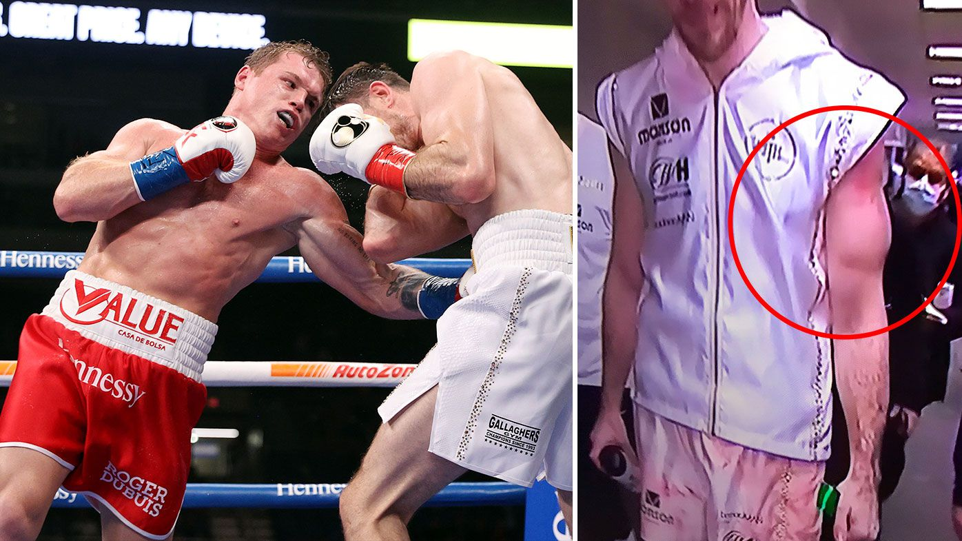 Callum Smith's left arm looks banged up