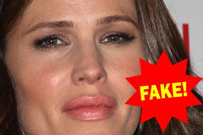 Jen's top lip mysteriously doubled in size a few years back. We're calling 'fake!'