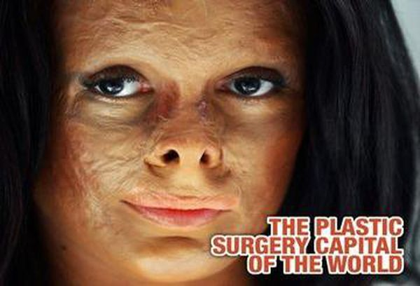Plastic Surgery Capital of the World