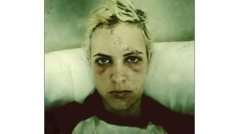 Bruised Samantha Ronson