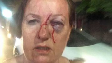 Brenda Graham was walking back to her Seminyak villa when she was attacked while filming a brawl.