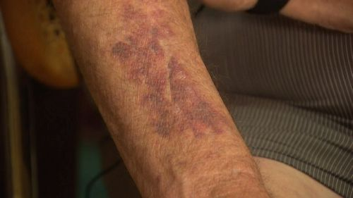 The grandfather said he tried to put up a fight but was left bruised. (9NEWS)