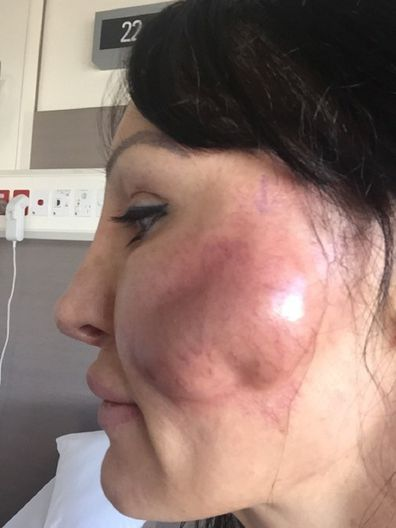 How fillers nearly cost one woman her face and her life - 9Honey